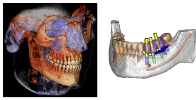 Oral & Maxillofacial Surgery NJ