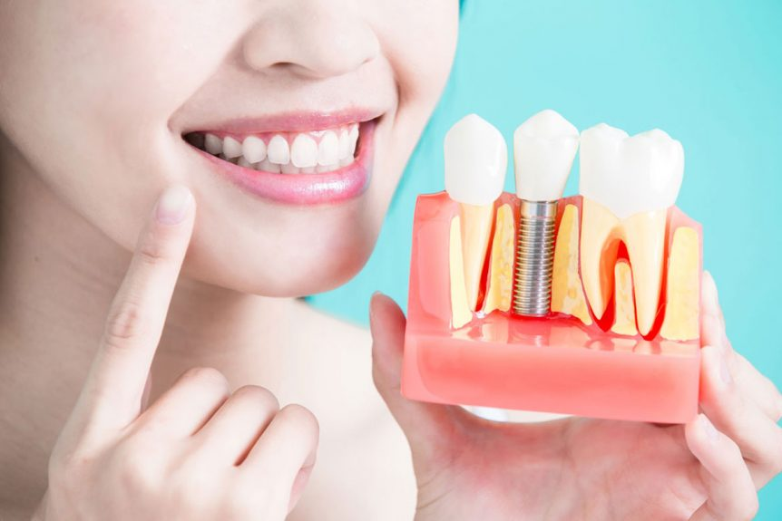 Oral Rehabilitation with Dental Implants