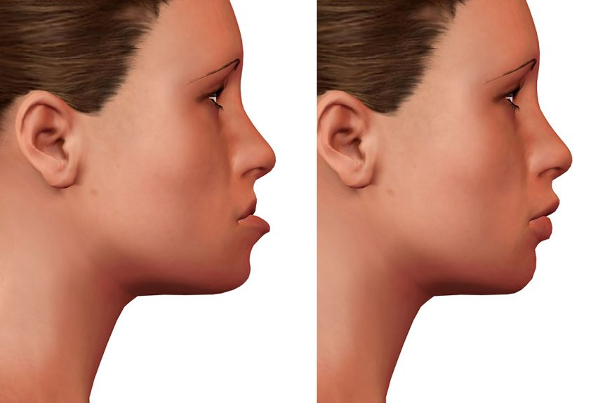 What Are the Benefits of Orthognathic Surgery?