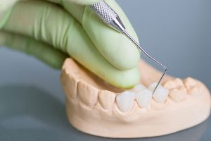 Preparing for Tooth Replacement